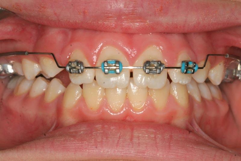 Braces – Non-extraction Straightwire Technique – Non-Extraction ...