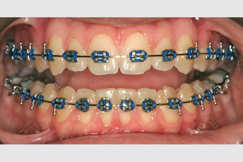 Cute Straight Wire Braces Pictures Inspiration - Electrical ...
