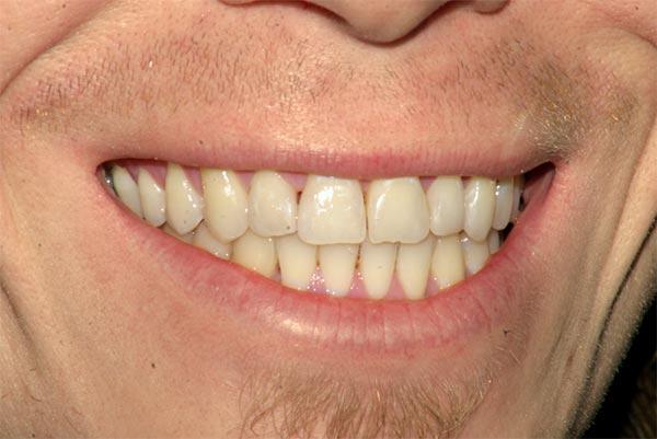 Wide Smile 1