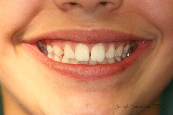 Wide Smile 3