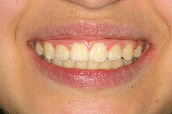 Wide Smile 2