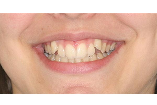 Braces in a girl in her late teen years - before