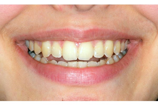 Braces in a girl in her late teen years - after