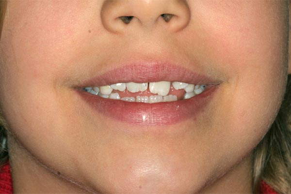Tongue thrust case in an adolescent - before
