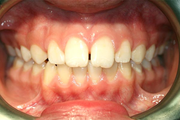 Tongue thrust case in an adolescent - after