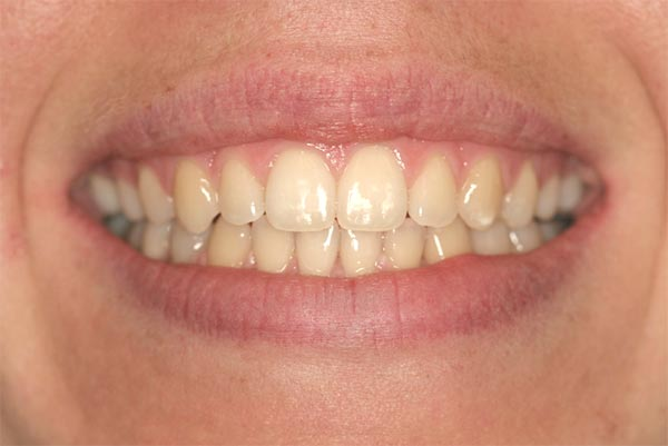 A tongue thrust case - After