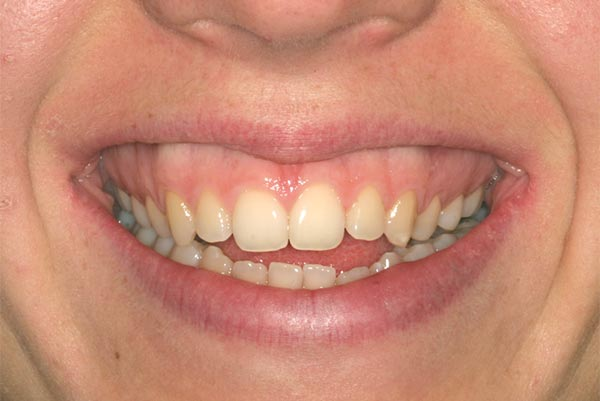 A tongue thrust case - Before